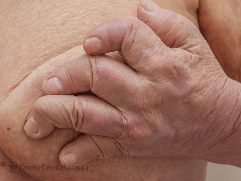 Псориаз На Голове Лечение В Домашних Условиях Мази